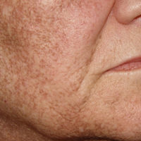 Hyper pigmentation on a woman's face