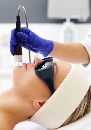 Exfoliation Agents and Treatments Blog - Laser treatment for the face.