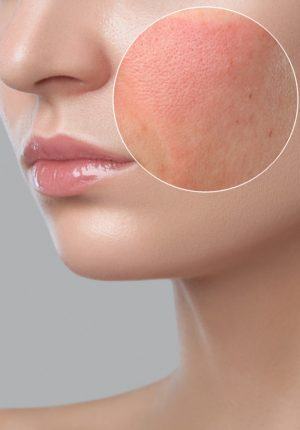 Rosacea: young girl with a problem skin. Photo before and after treatment for acne and Demodecosis. Skin treatment, spa treatments. Cosmetology and professional skin care.